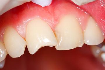 Teeth needing medical attention - part of portfolio