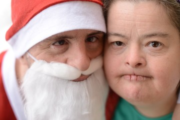 Santa with down syndrome