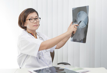 female doctor watching on head skull x-ray film