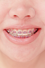 close up of young girl smiling with braces