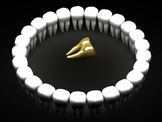 golden tooth surrounded  by white teeth - 3d rendering
