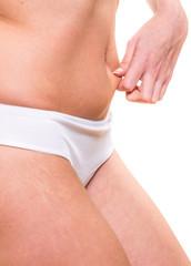 Cute female squeezes cellulite skin
