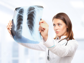Young female doctor looking at the x-ray picture of lungs