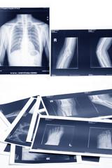 medical x-ray film