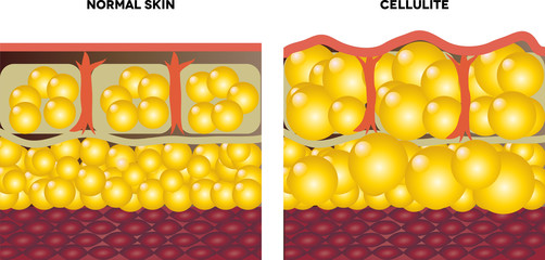 Cellulite and normal skin
