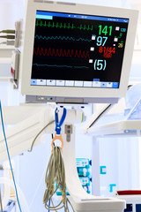 ECG monitor in ICU