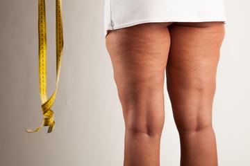 Cellulite bei einer jungen Frau