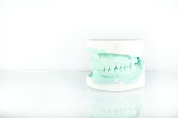 Dental Cast