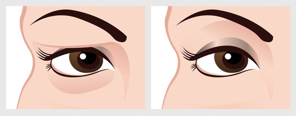 Baggy eyes. Vector image of eye before and after.