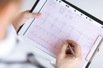male doctor hands with cardiogram