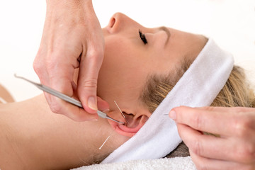 Alternative practitioner treating woman with acupuncture.