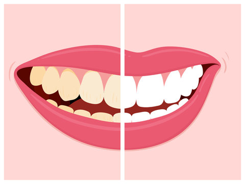 Before and after view of teeth whitening