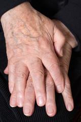Gefaltete Hände eines Senioren
