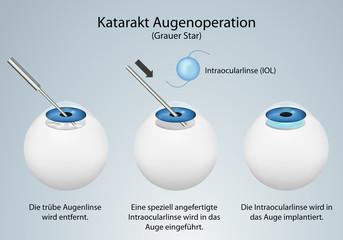 Katarakt Augenoperation (Grauer Star)