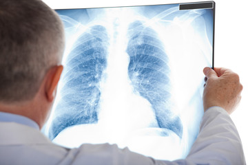 Doctor examining a lung radiography