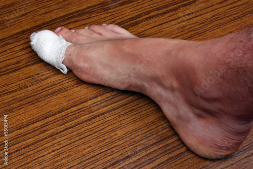 Сорвать ноготь на ноге