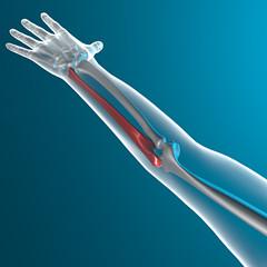 Ulna braccio raggi x corpo umano