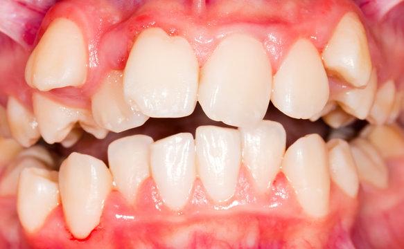 Dental displacement