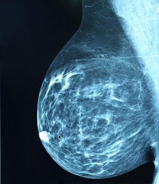 Mammogram radio imagingr breast cancer diagnosis