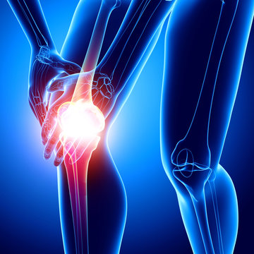 X-ray human of knee pain
