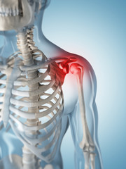 3d rendered illustration of a painful shoulder