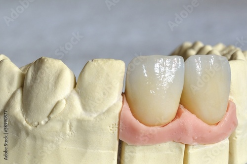 prothesis pictures Download royalty-free denture stock photo 8244567 from depositphotos collection of millions of premium high-resolution stock photos, vector images and illustrations.