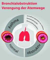 Asthma-Bronchialobstruktion