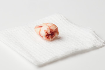 Blood covered extracted wisdom tooth on gauze