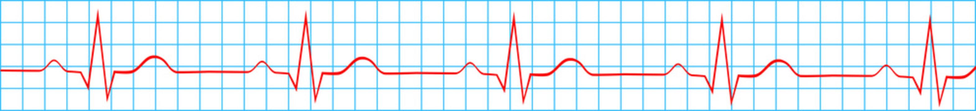 Heart Normal Sinus Rhythm On Electrocardiogram Record