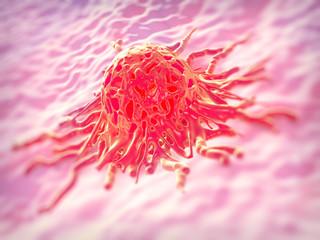 Cervical cancer cell, SEM of Cervical Carcinoma