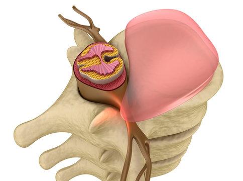 Prolapse of intervertebral disc closeup