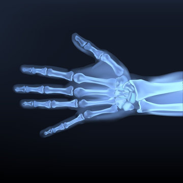 Vector of Hand x-ray