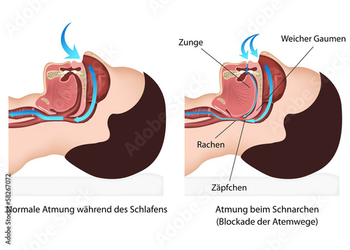 Atmung Wahrend Des Schnarchens Stock Image And Royalty Free