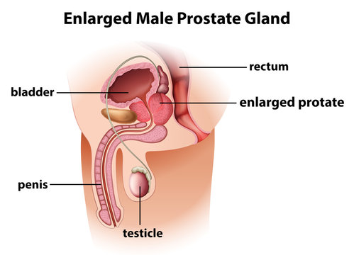 Enlarged male prostate gland