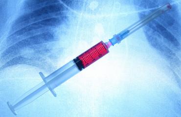 Syringe on an x-ray imagex-ray