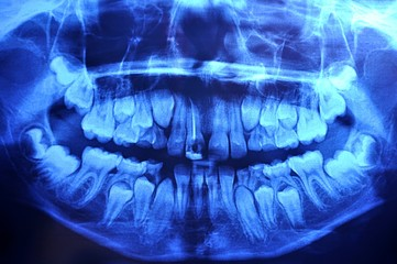 12-year old boy panoramic dental x-ray