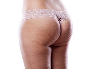 female bottom attacked by cellulite
