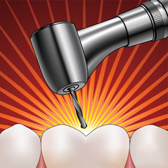 Dentist Drilling Tooth