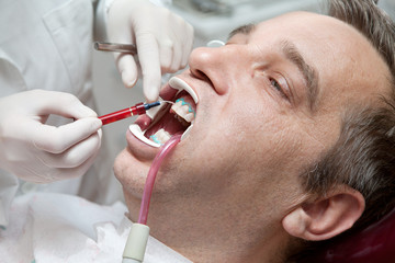 Man during teeth whitening process at the dentist office