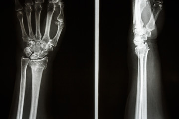 Colles' fracture