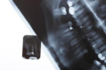 X-ray scan of humans teeth