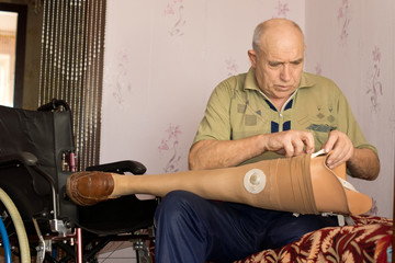 Senior man checking out his prosthetic leg