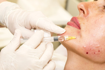 Close-up cosmetic treatment with syringe injection in a clinic