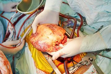 Cardiac surgery heart transplantation
