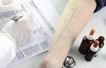 Arzt schribt in Formular Allergietest Pricktest