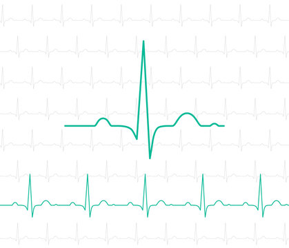 EKG symbol on white - vector medical background