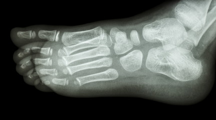 x-ray foot lateral : show normal child's foot
