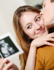 Beautiful couple watching with emotion ultrasound pictures of th