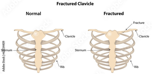 Fractured Clavicle Labeled Diagram Stock Photo And Royalty Free