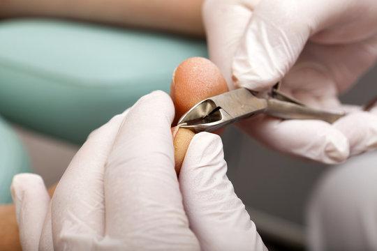 Zehennägel werden mit Zange beschnitten